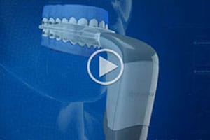 Acceledent Video Thumbnail at Hannah Orthodontics in Olathe Emporia Lenexa/Shawnee Louisburg Kansas City, KS