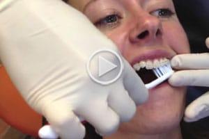 Brushing with Braces Video at Hannah Orthodontics in Olathe Emporia Lenexa/Shawnee Louisburg Kansas City