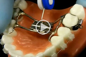 Palate Expander at Hannah Orthodontics in Olathe Emporia Lenexa/Shawnee Louisburg Kansas City