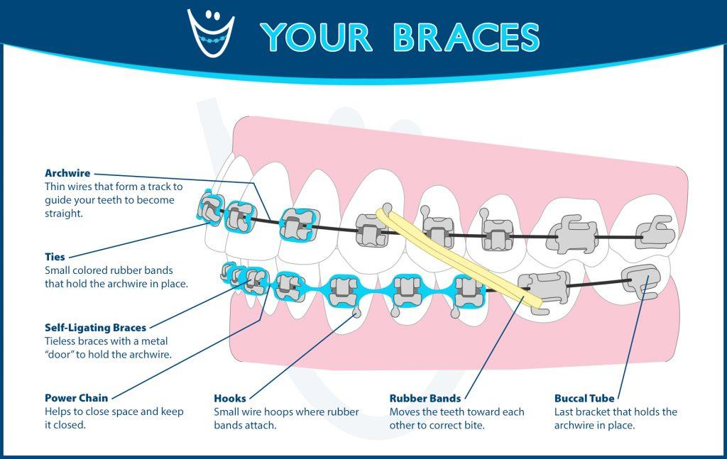 braces-diagram